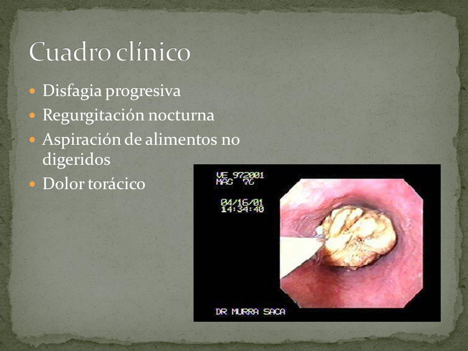 Cuadro clínico Disfagia progresiva Regurgitación nocturna