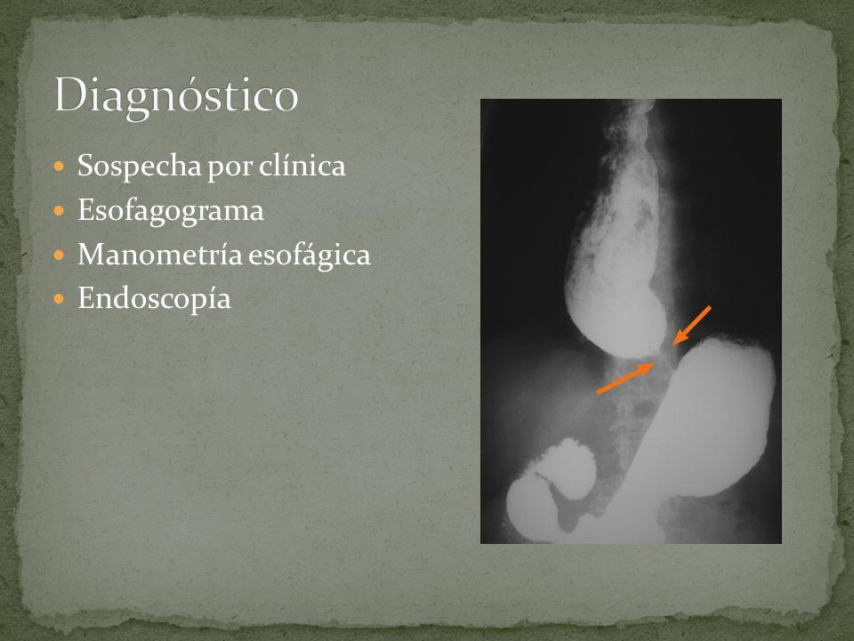 Diagnóstico Sospecha por clínica Esofagograma Manometría esofágica