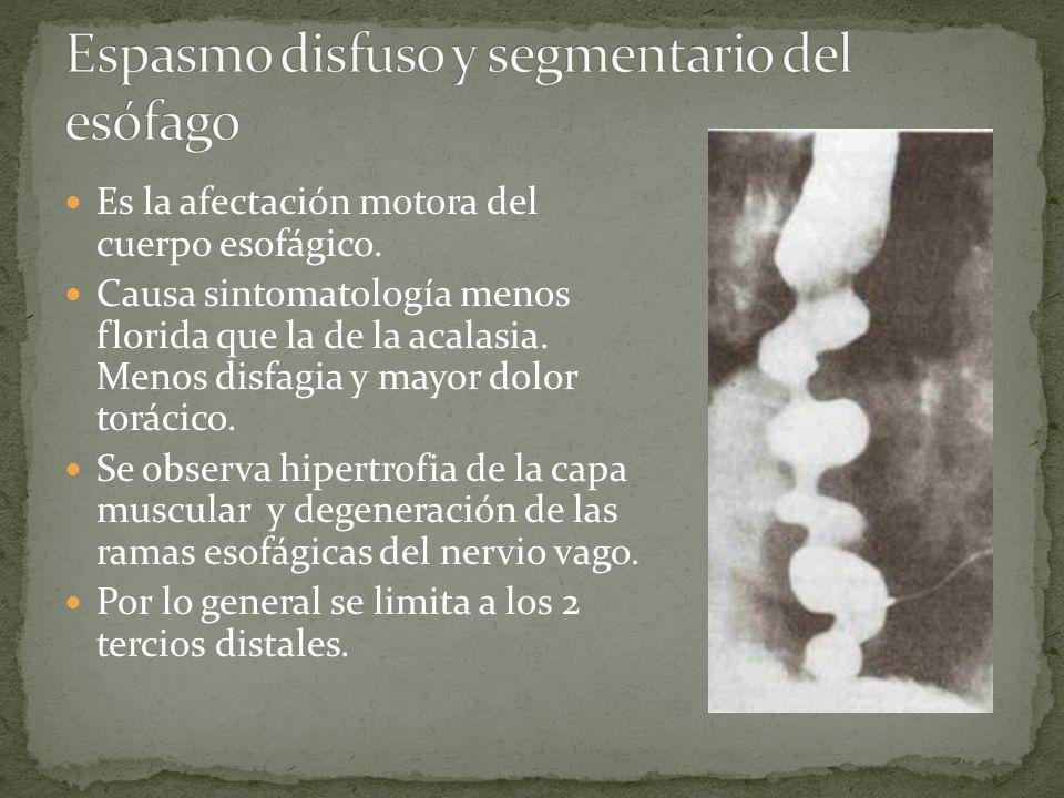 Espasmo disfuso y segmentario del esófago