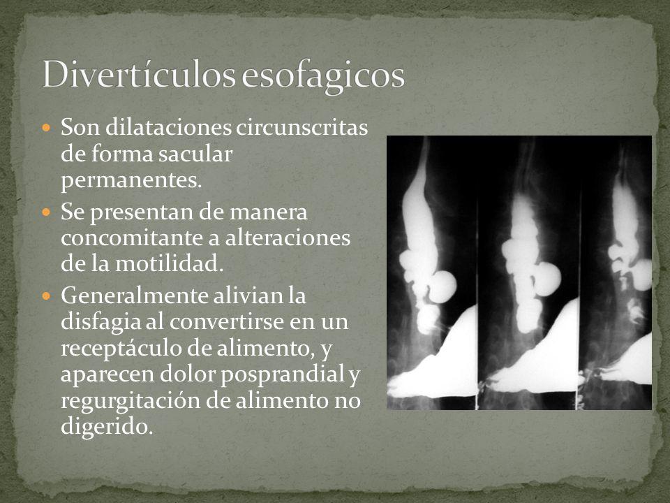 Divertículos esofagicos