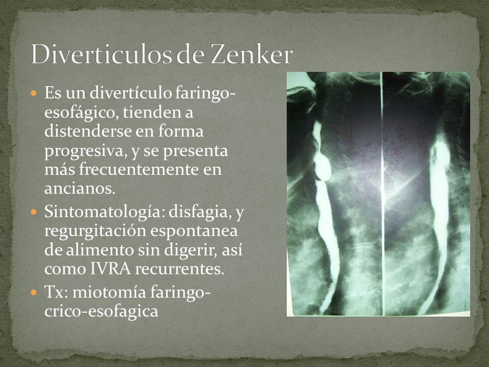 Diverticulos de Zenker