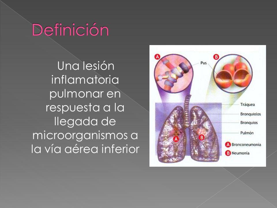 Definición Una lesión inflamatoria pulmonar en respuesta a la llegada de microorganismos a la vía aérea inferior.
