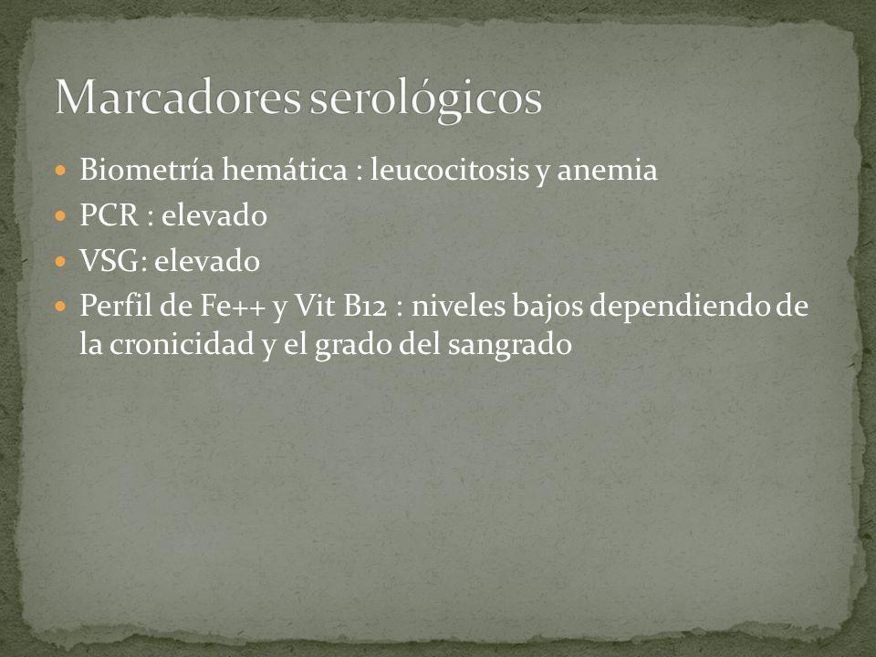 Marcadores serológicos