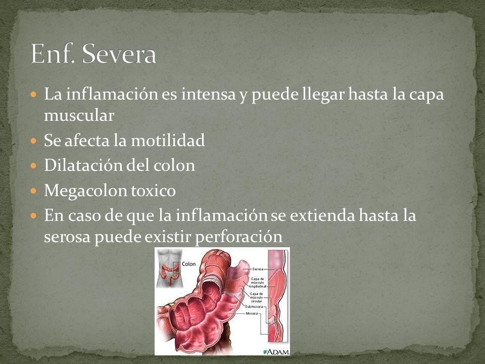 Enf. Severa La inflamación es intensa y puede llegar hasta la capa muscular. Se afecta la motilidad.
