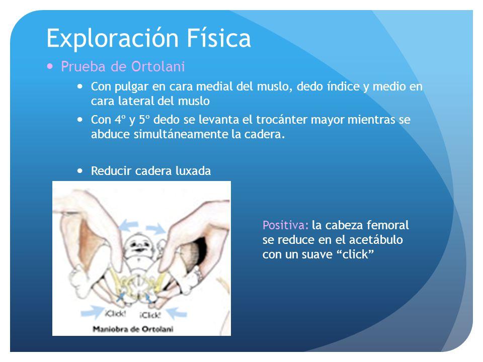 Exploración Física Prueba de Ortolani