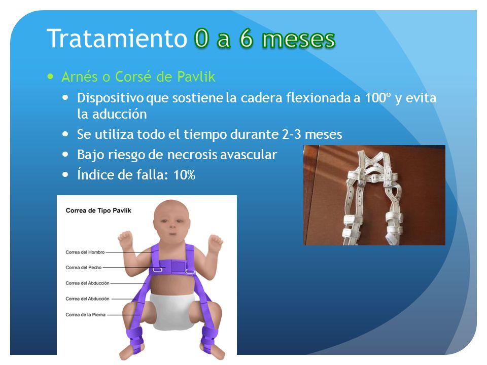Tratamiento 0 a 6 meses Arnés o Corsé de Pavlik