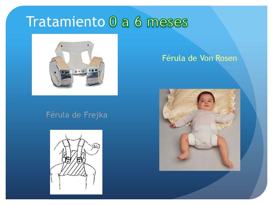 Tratamiento 0 a 6 meses Férula de Von Rosen Férula de Frejka