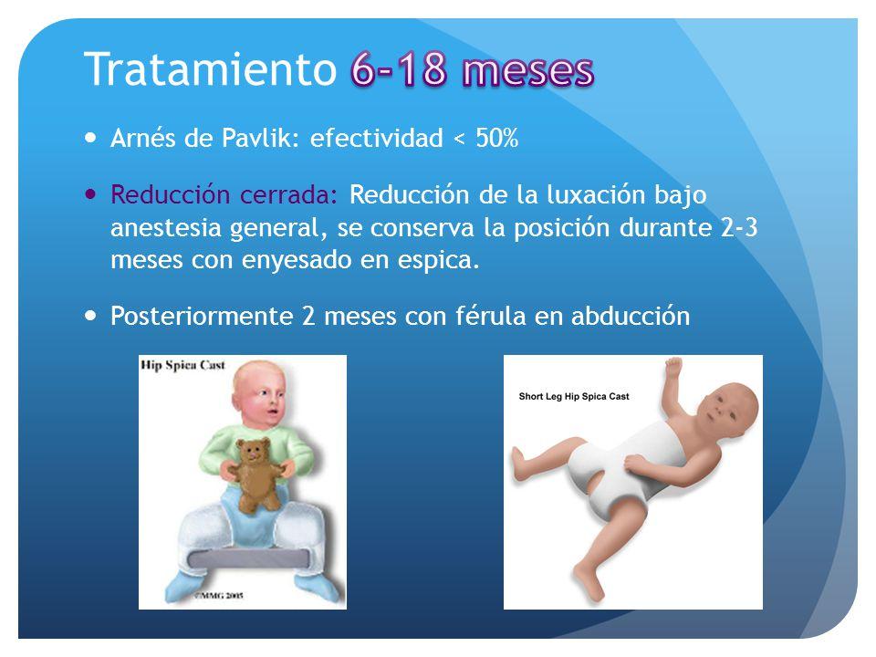 Tratamiento 6-18 meses Arnés de Pavlik: efectividad < 50%