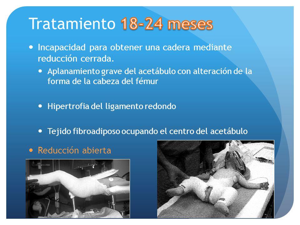 Tratamiento 18-24 meses Incapacidad para obtener una cadera mediante reducción cerrada.