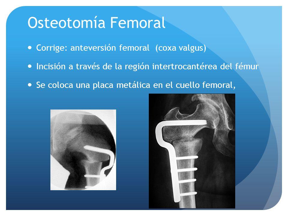 Osteotomía Femoral Corrige: anteversión femoral (coxa valgus)