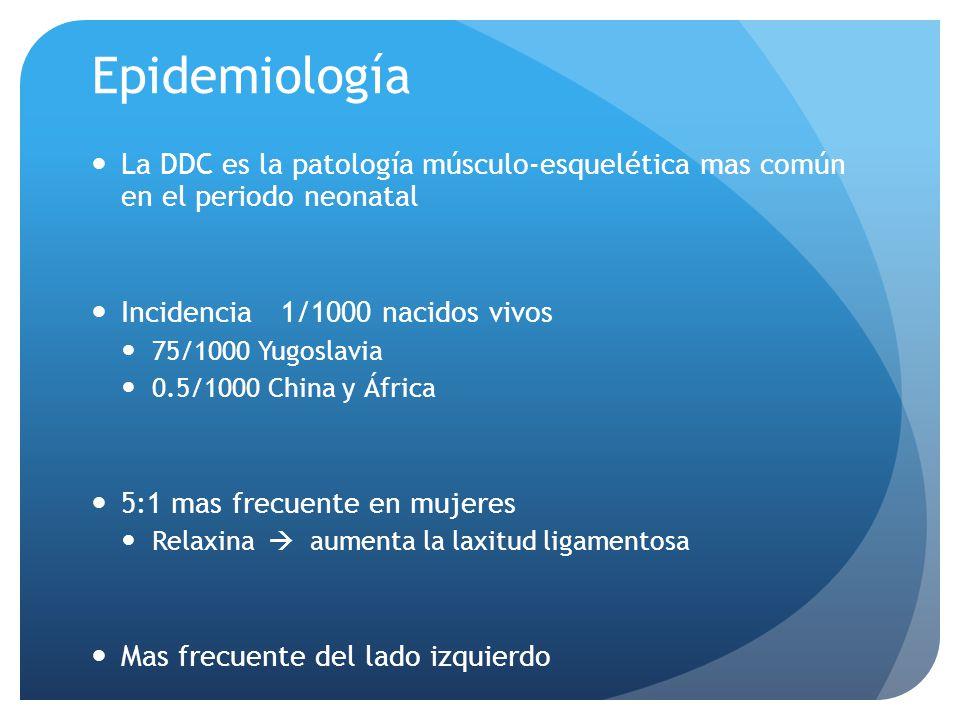 Epidemiología La DDC es la patología músculo-esquelética mas común en el periodo neonatal. Incidencia 1/1000 nacidos vivos.