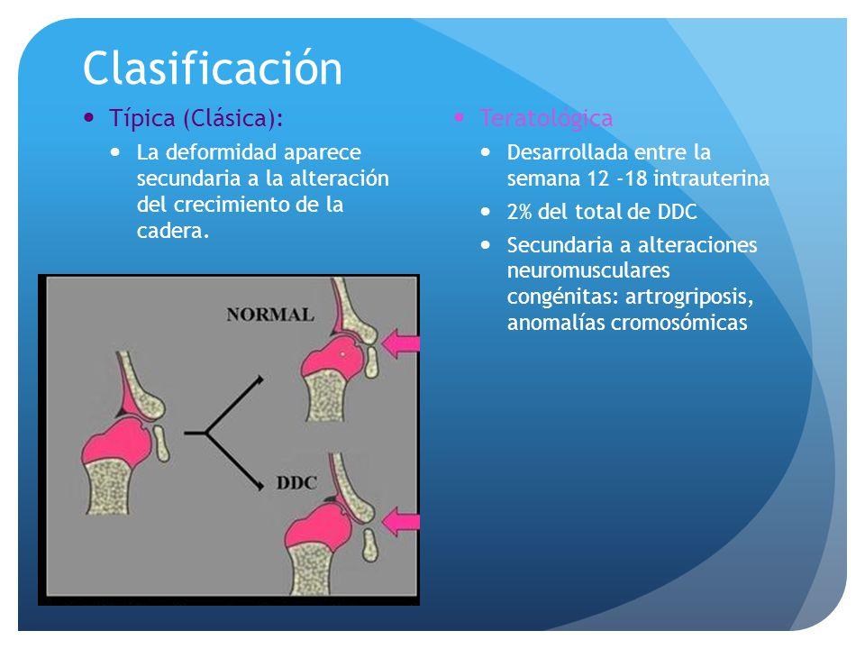 Clasificación Típica (Clásica): Teratológica