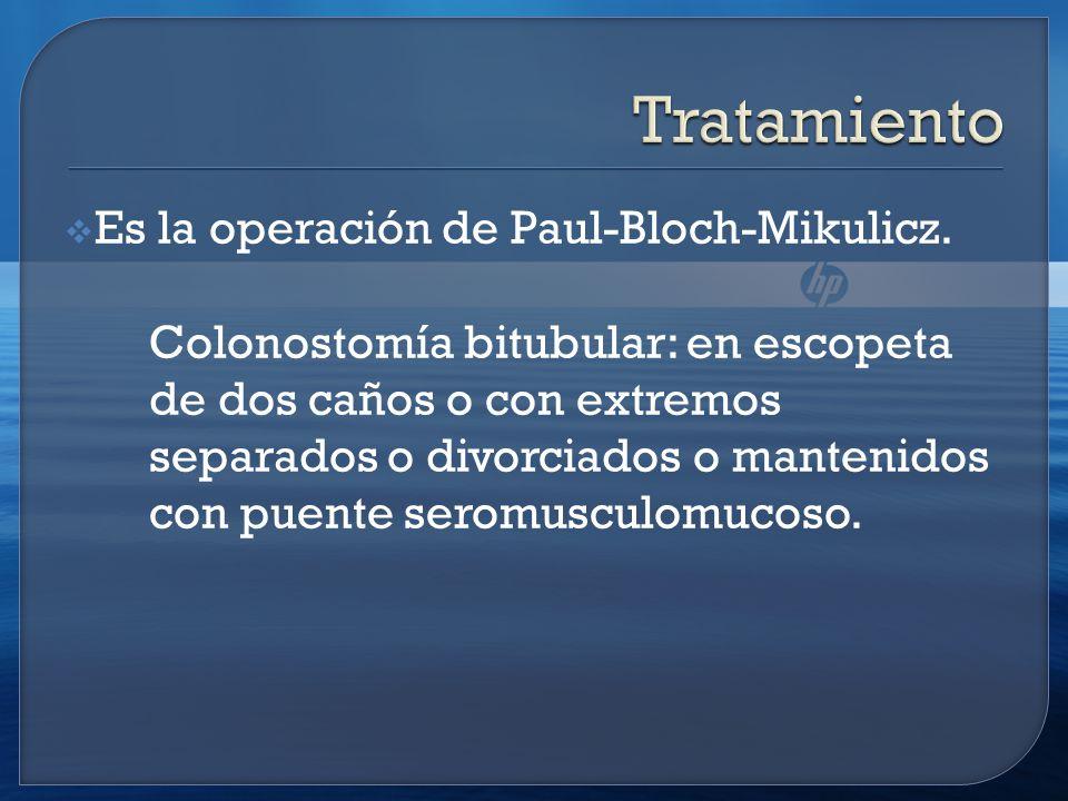 Tratamiento Es la operación de Paul-Bloch-Mikulicz.