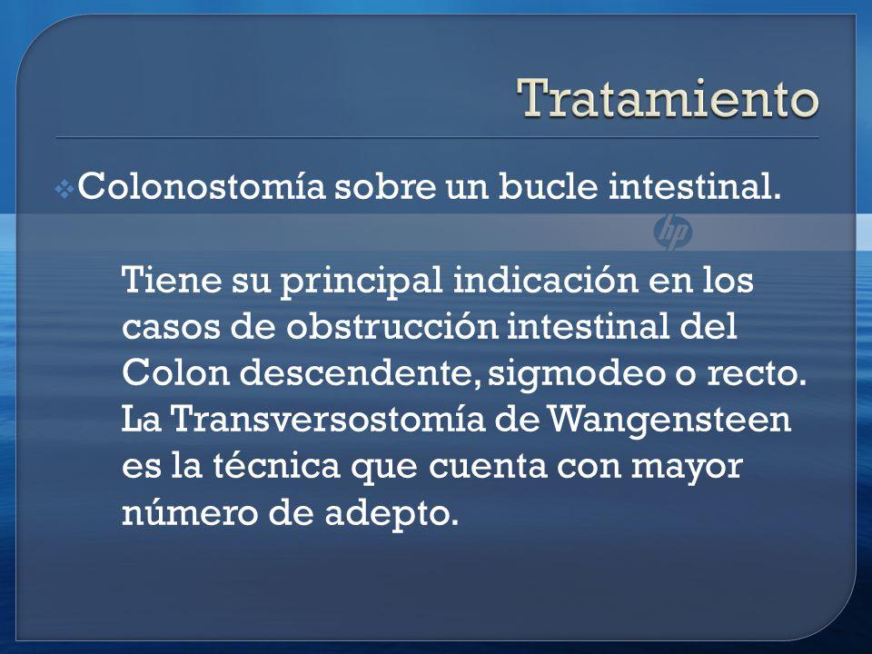 Tratamiento Colonostomía sobre un bucle intestinal.