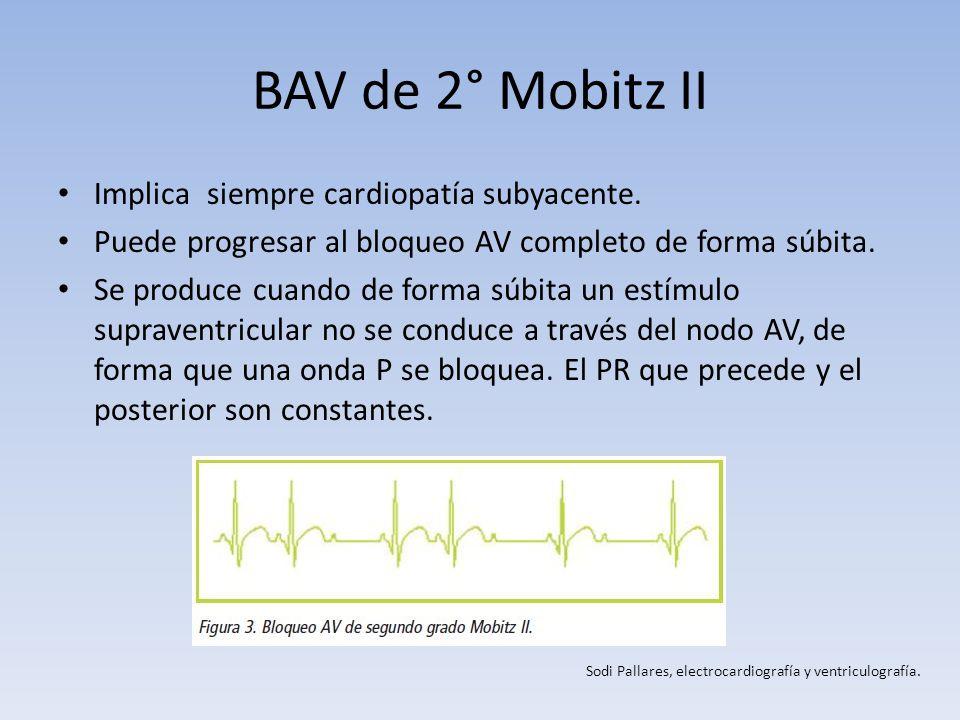 BAV de 2° Mobitz II Implica siempre cardiopatía subyacente.