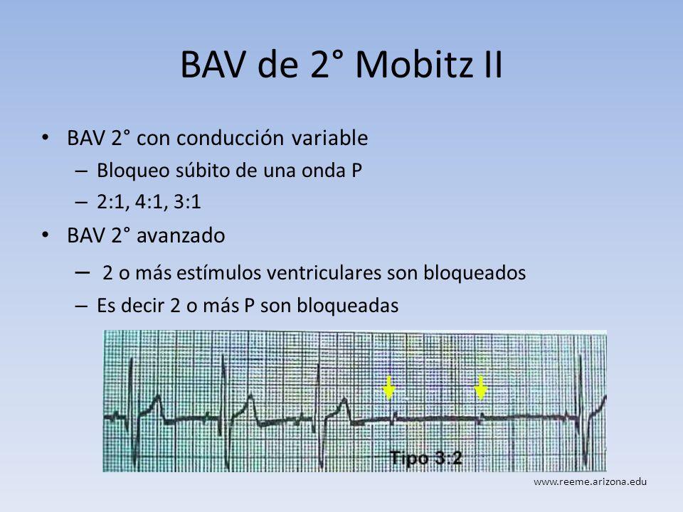 BAV de 2° Mobitz II 2 o más estímulos ventriculares son bloqueados