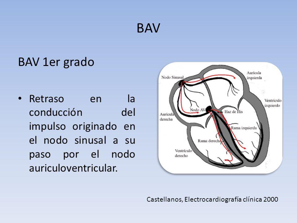 BAV BAV 1er grado. Retraso en la conducción del impulso originado en el nodo sinusal a su paso por el nodo auriculoventricular.