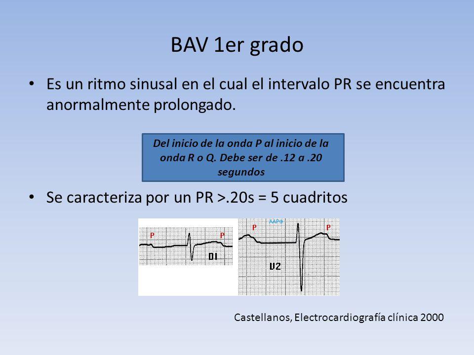 BAV 1er grado Es un ritmo sinusal en el cual el intervalo PR se encuentra anormalmente prolongado. Se caracteriza por un PR ˃.20s = 5 cuadritos.