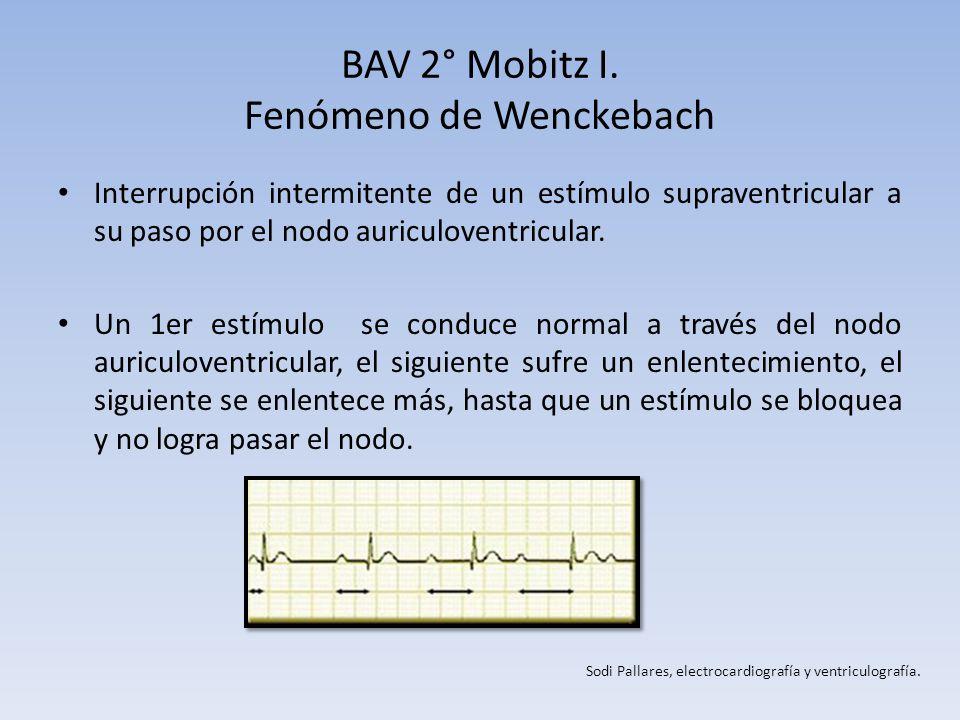 BAV 2° Mobitz I. Fenómeno de Wenckebach