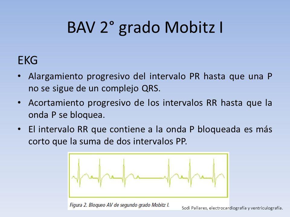 BAV 2° grado Mobitz I EKG. Alargamiento progresivo del intervalo PR hasta que una P no se sigue de un complejo QRS.
