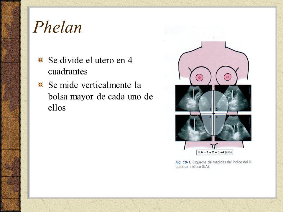 Phelan Se divide el utero en 4 cuadrantes