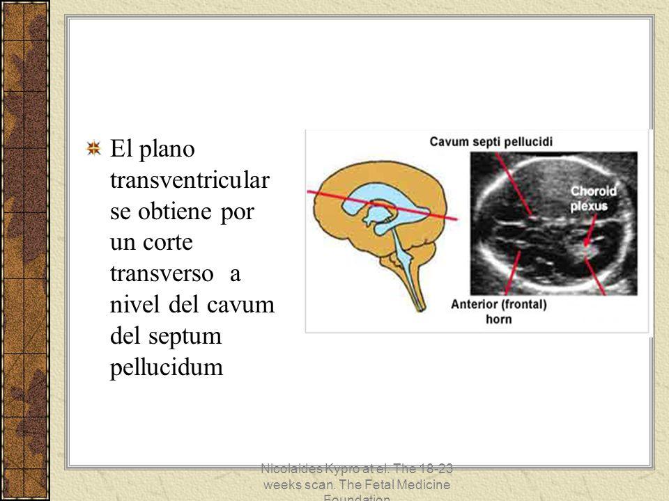 El plano transventricular se obtiene por un corte transverso a nivel del cavum del septum pellucidum