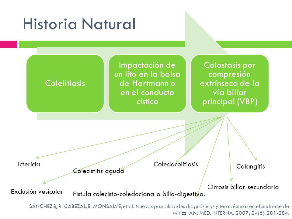 Colostasis por compresión extrínseca de la vía biliar principal (VBP)