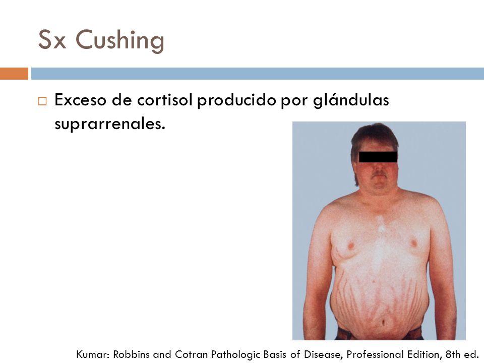 Sx Cushing Exceso de cortisol producido por glándulas suprarrenales.