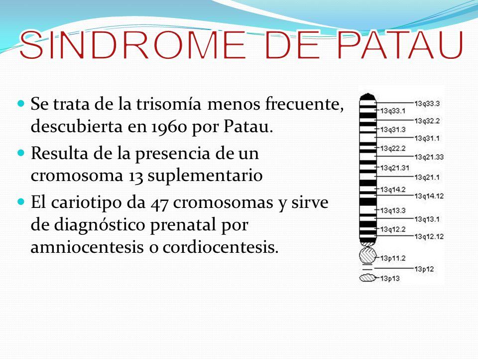 SINDROME DE PATAU Se trata de la trisomía menos frecuente, descubierta en 1960 por Patau. Resulta de la presencia de un cromosoma 13 suplementario.