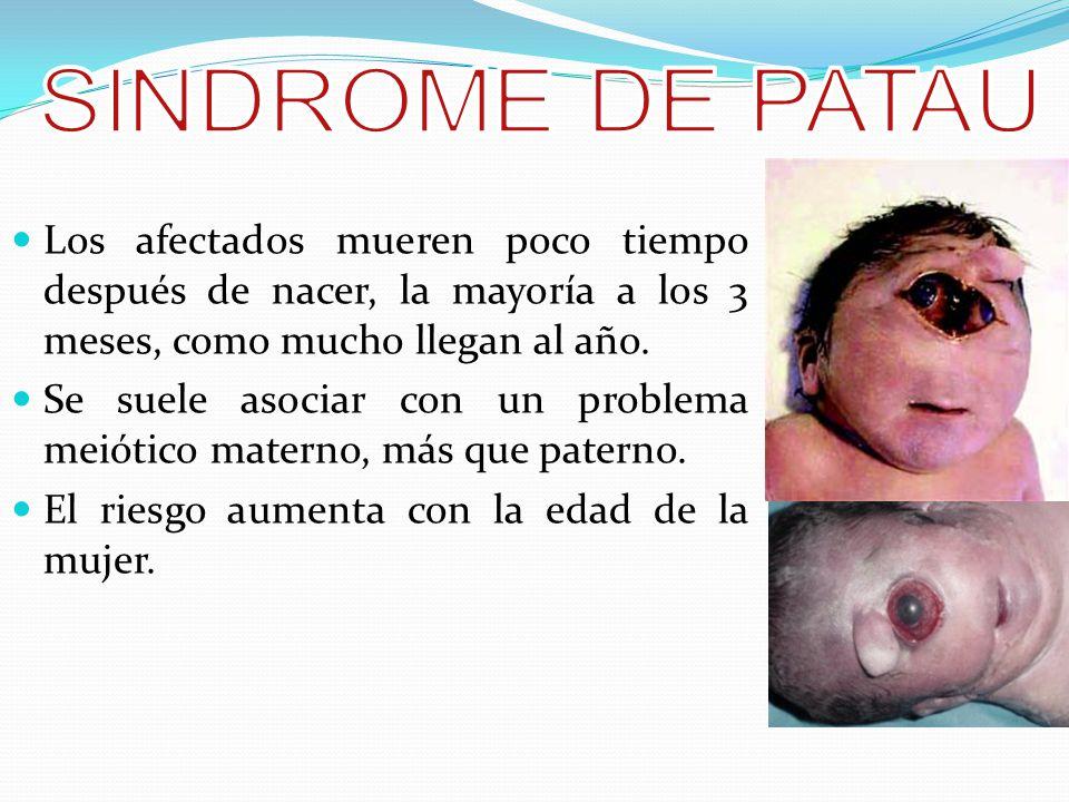 SINDROME DE PATAU Los afectados mueren poco tiempo después de nacer, la mayoría a los 3 meses, como mucho llegan al año.