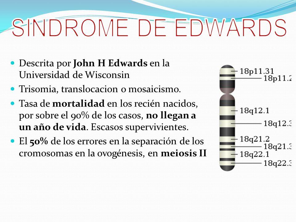 SINDROME DE EDWARDS Descrita por John H Edwards en la Universidad de Wisconsin. Trisomia, translocacion o mosaicismo.