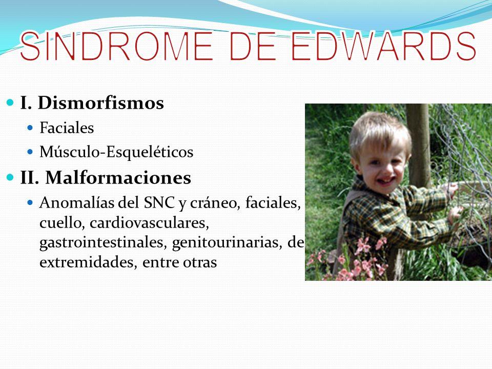 SINDROME DE EDWARDS I. Dismorfismos II. Malformaciones Faciales