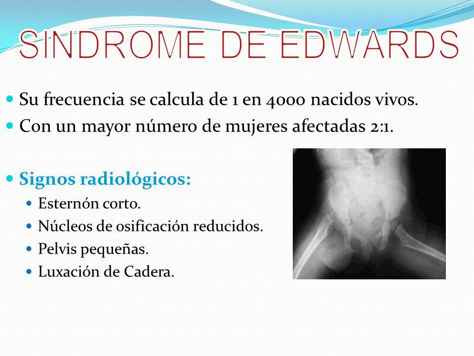 SINDROME DE EDWARDS Su frecuencia se calcula de 1 en 4000 nacidos vivos. Con un mayor número de mujeres afectadas 2:1.