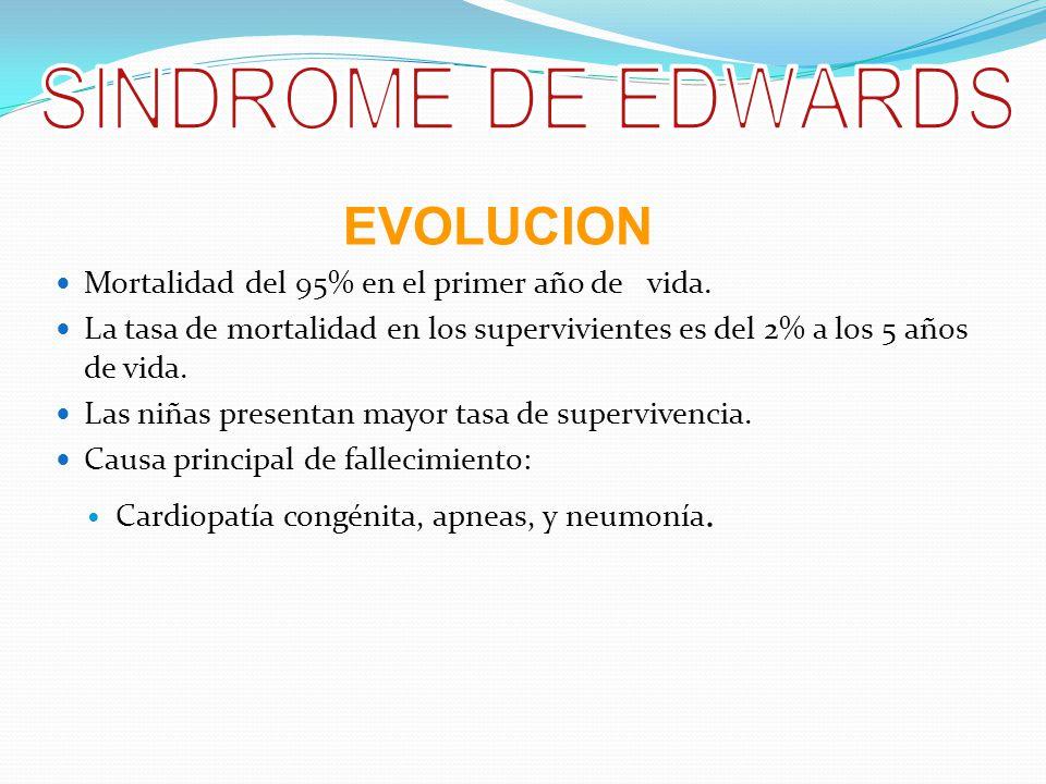 SINDROME DE EDWARDS EVOLUCION
