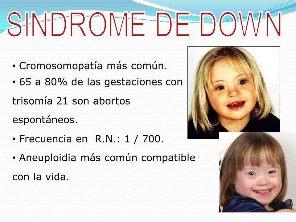 SINDROME DE DOWN Cromosomopatía más común.