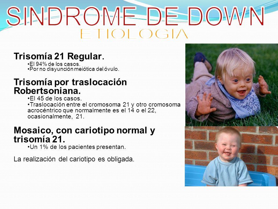 SINDROME DE DOWN ETIOLOGIA Trisomía 21 Regular.