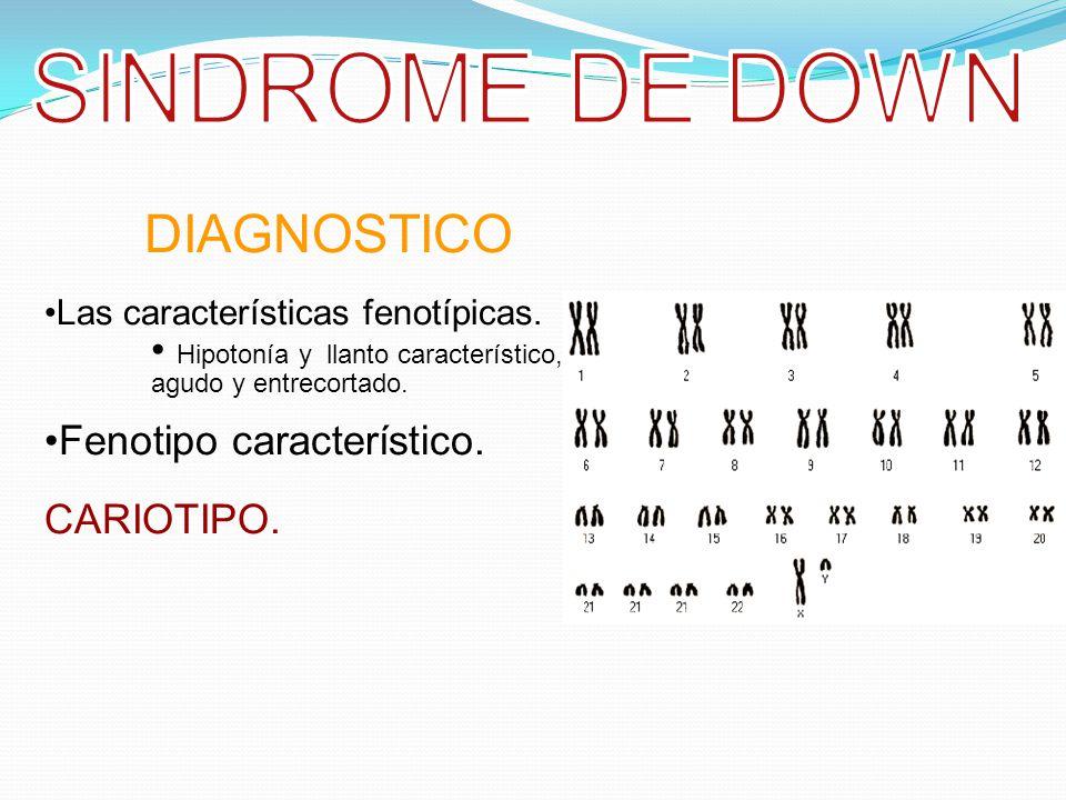SINDROME DE DOWN DIAGNOSTICO