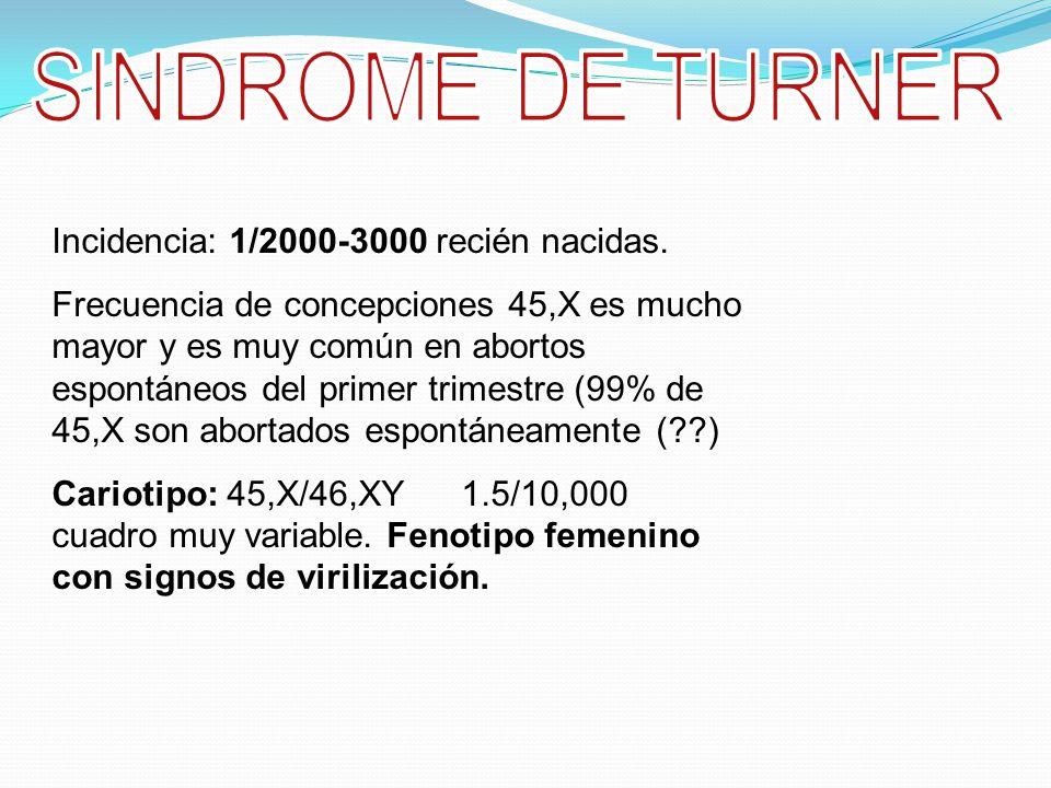 SINDROME DE TURNER Incidencia: 1/2000-3000 recién nacidas.