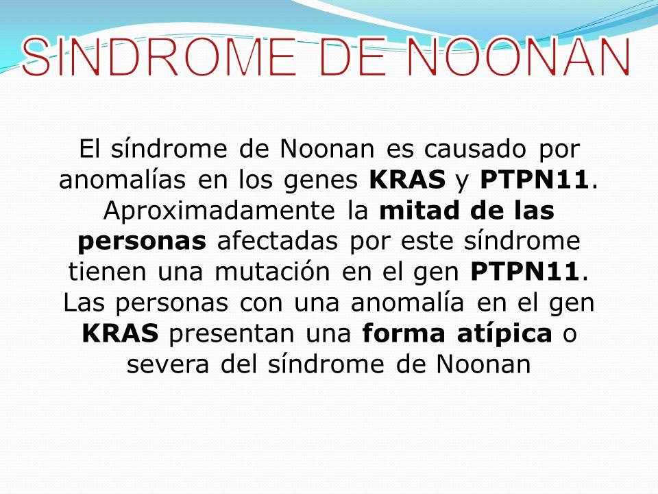 SINDROME DE NOONAN
