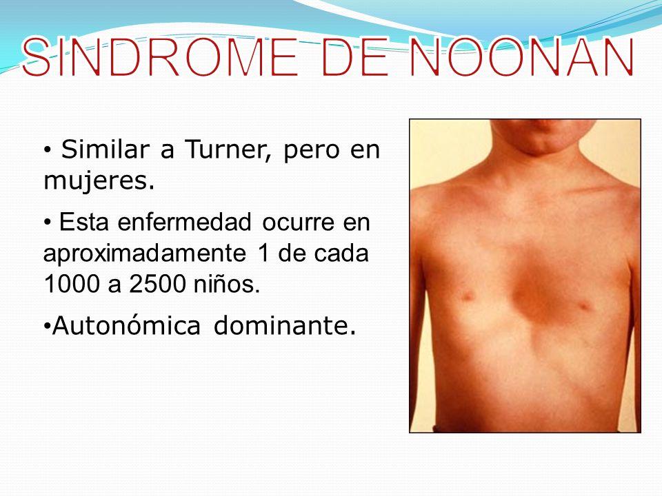 SINDROME DE NOONAN Similar a Turner, pero en mujeres.