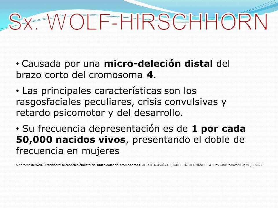 Sx. WOLF-HIRSCHHORN Causada por una micro-deleción distal del brazo corto del cromosoma 4.