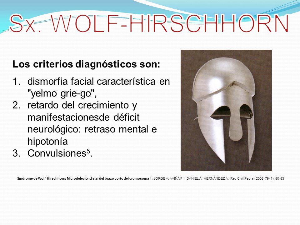 Sx. WOLF-HIRSCHHORN Los criterios diagnósticos son: