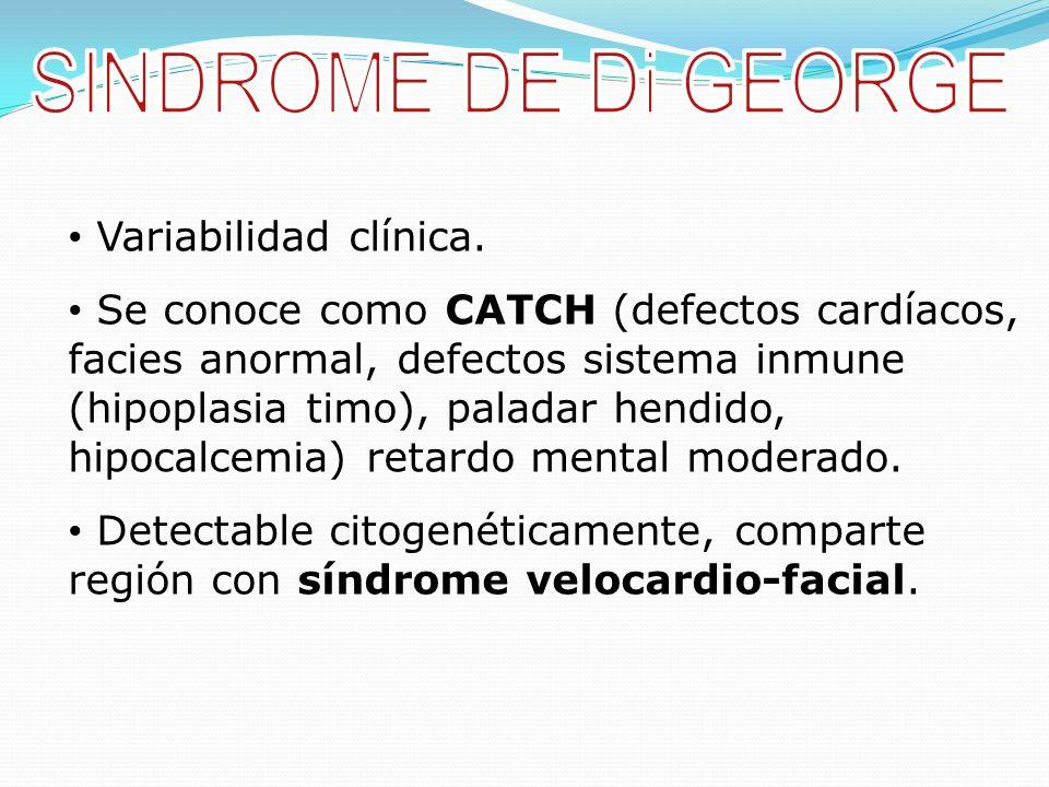 SINDROME DE Di GEORGE Variabilidad clínica.
