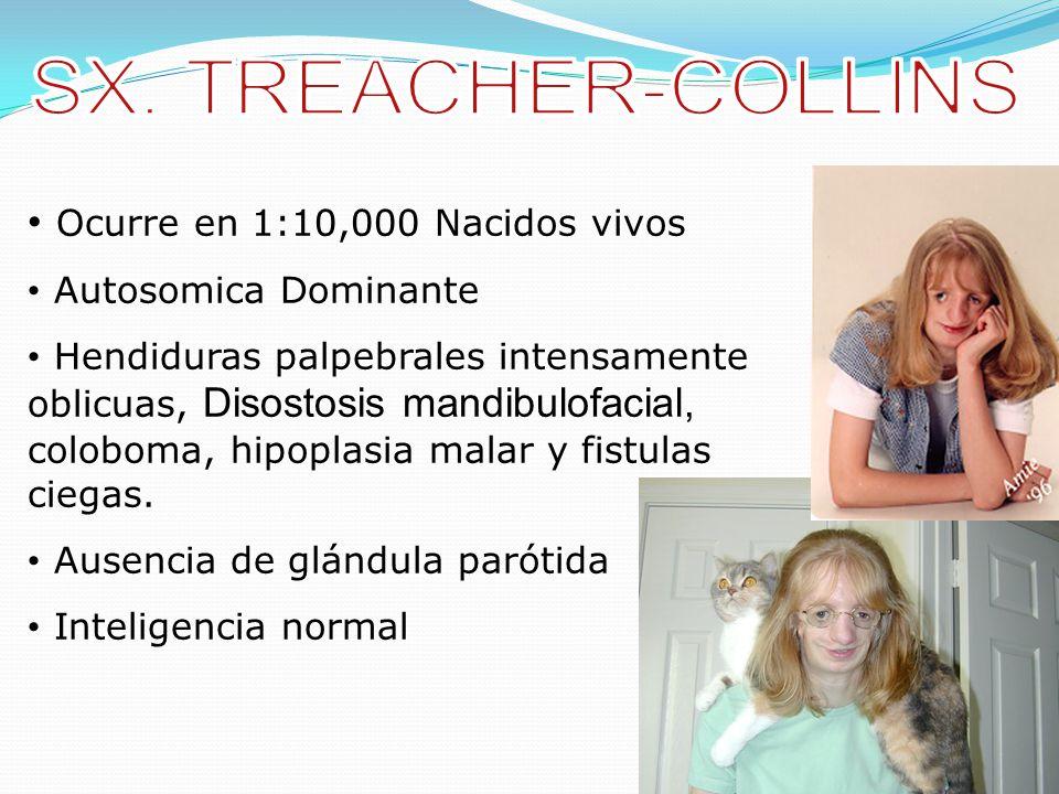 SX. TREACHER-COLLINS Ocurre en 1:10,000 Nacidos vivos