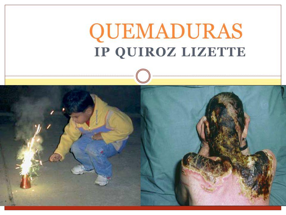 QUEMADURAS IP QUIROZ LIZETTE