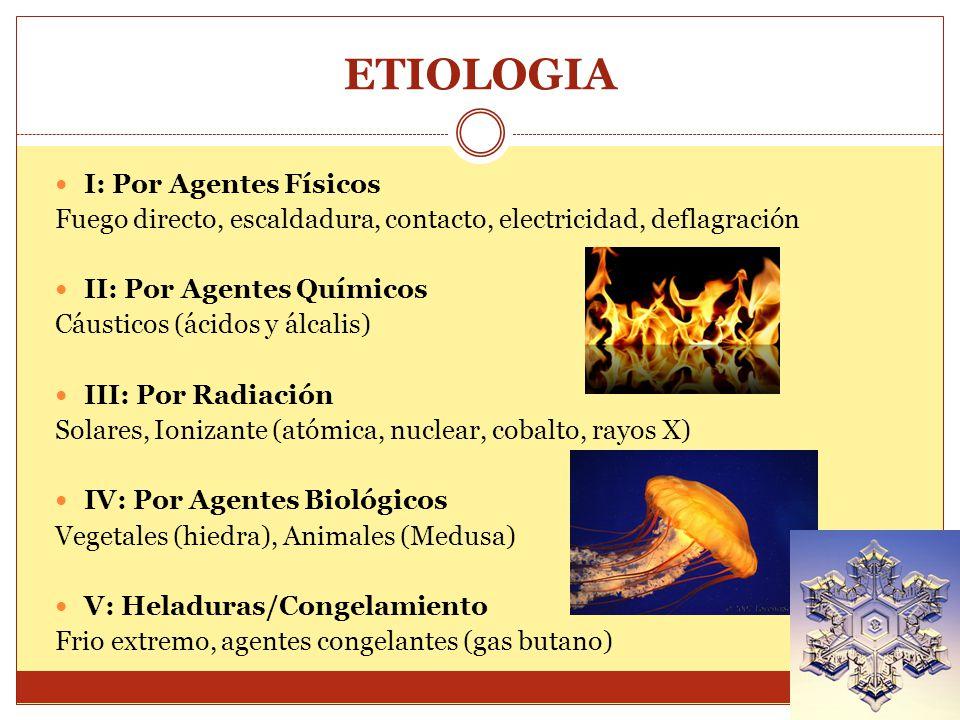 ETIOLOGIA I: Por Agentes Físicos