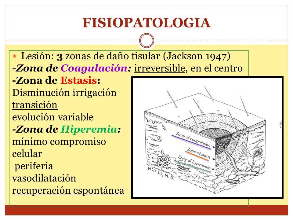 FISIOPATOLOGIA Lesión: 3 zonas de daño tisular (Jackson 1947)