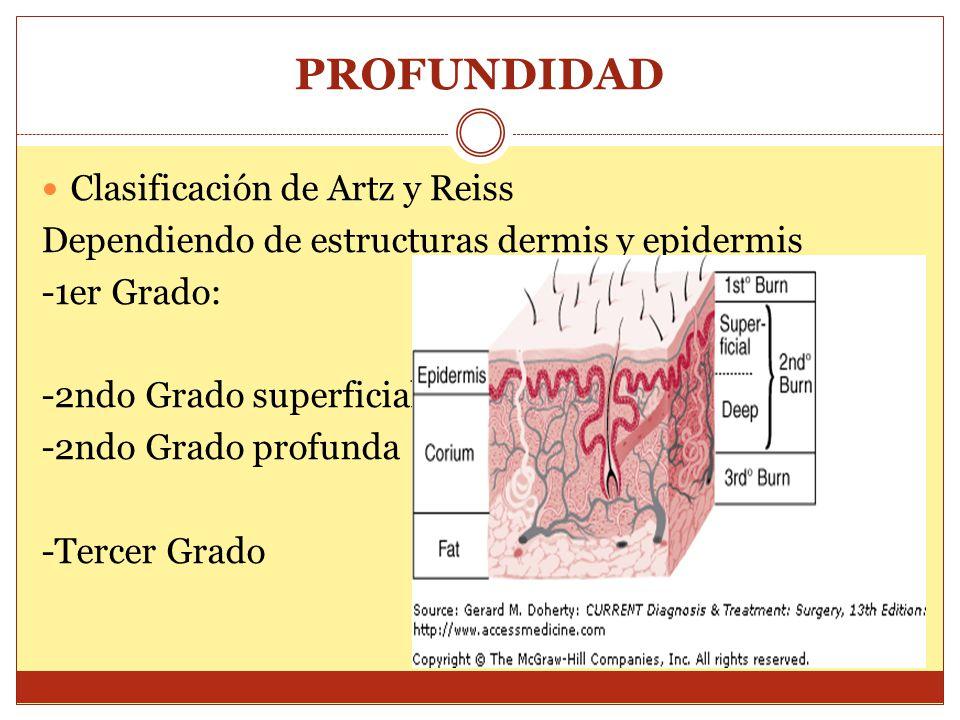 PROFUNDIDAD Clasificación de Artz y Reiss