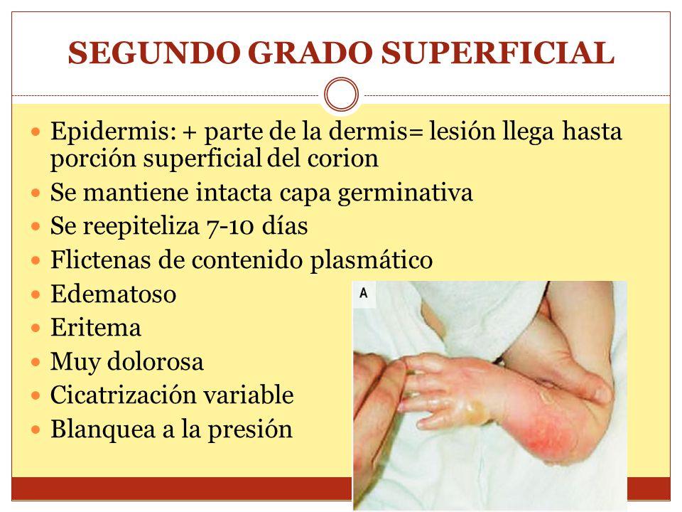 SEGUNDO GRADO SUPERFICIAL
