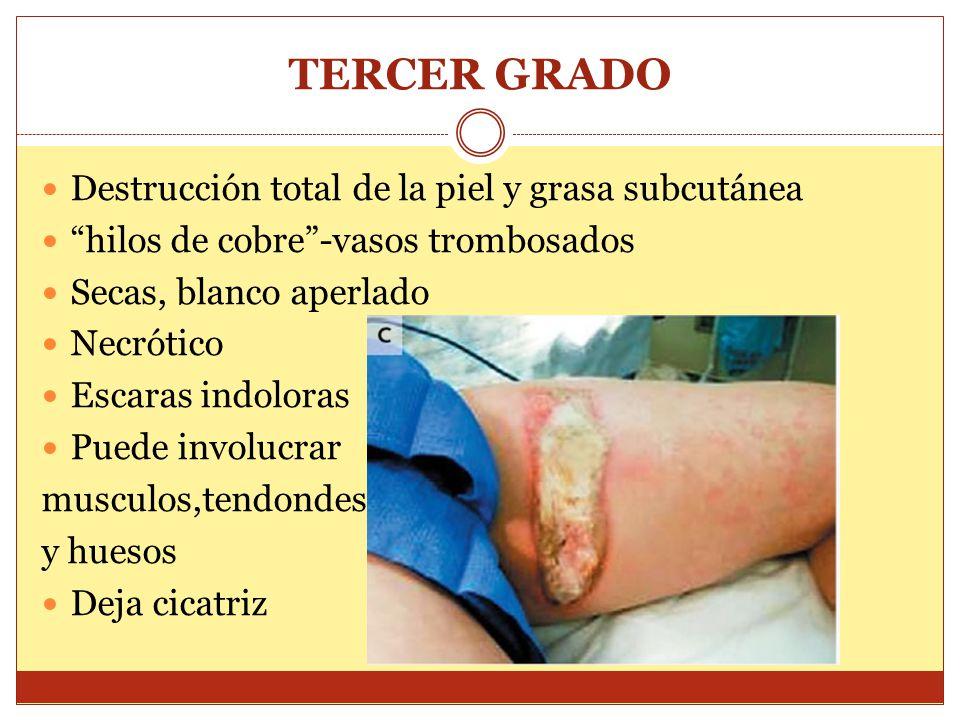 TERCER GRADO Destrucción total de la piel y grasa subcutánea